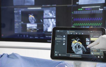 Під час проведення ESC 2020 компанія Philips представила вражаючі рішення в кардіології, які забезпечують кращий догляд за пацієнтами та надають більшу ефективність для медичного закладу