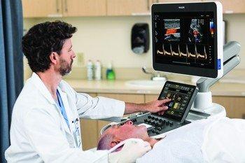 Інноваційні рішення Philips для судинних досліджень