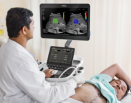 Сучасні технології: на шляху вдосконалення ультразвукової діагностики в клінічній практиці